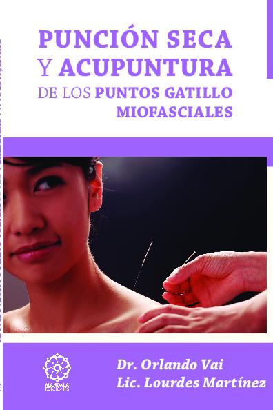 Puncion seca y acupuntura de los puntos gatillo miofasciales